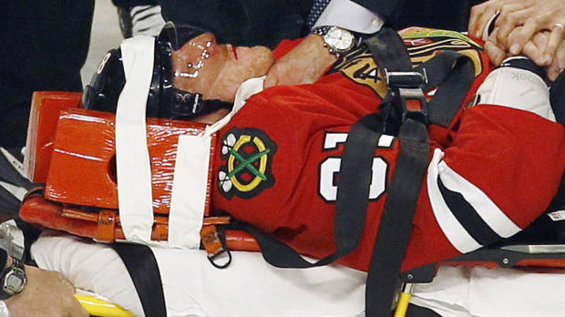 Hossa taken off on a stretcher